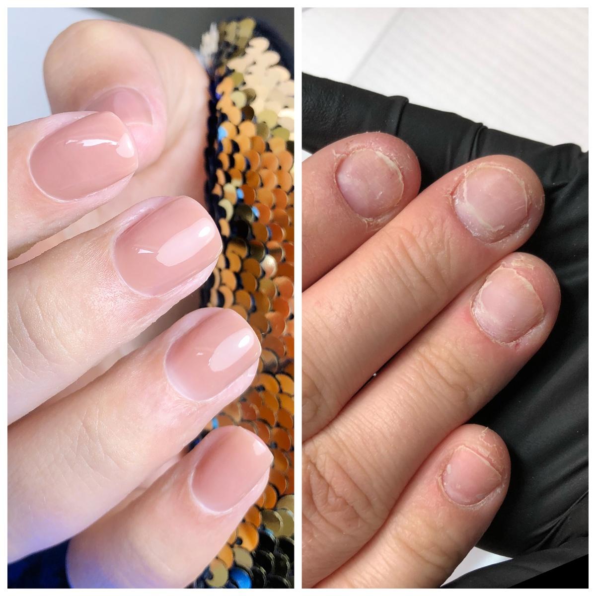 Rekonstrukcja paznokci obgryzionych i uszkodzonych